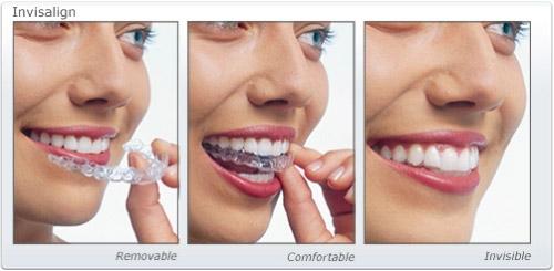 invisalign invisible braces, transparent, removable